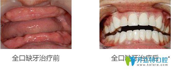 65岁王先生做完立得用全口种植牙后对比效果