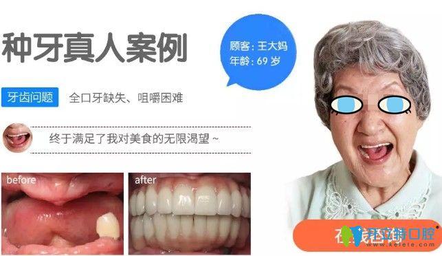 69岁王大妈在北极星做完全口种植牙对比效果