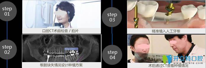 深圳格伦菲尔口腔种植牙流程图