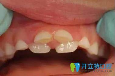 乳牙滞留造成的双排牙症状图