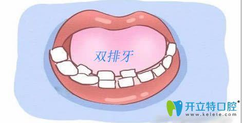 门牙里面又长出小门牙的双排牙示意图