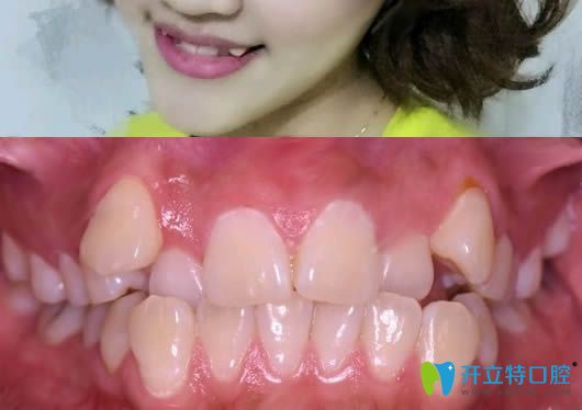 觉得洛阳九龙口腔的收费不贵,于是做了牙齿矫正和美白