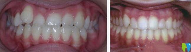 三门峡口腔儿童反颌矫正案例