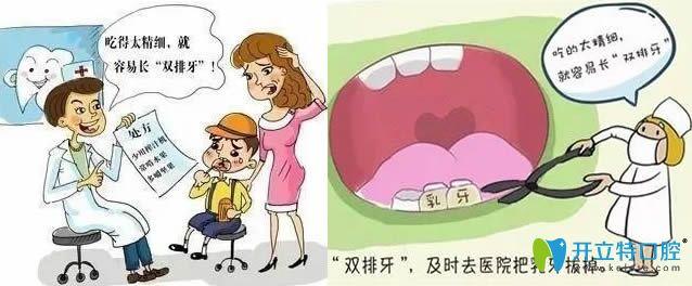 儿童长了双排牙要及时到拔掉
