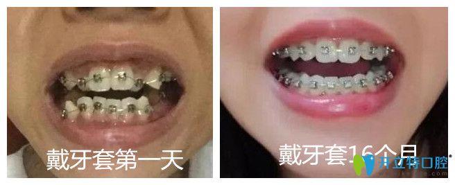 合肥崔劲松口腔金属托槽牙齿矫正案例