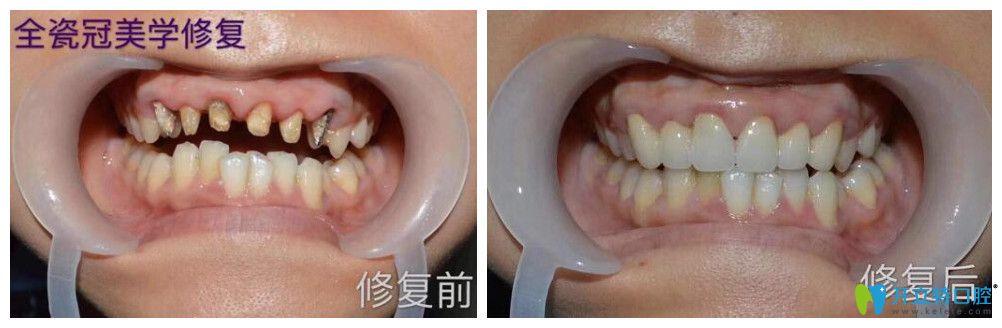逸盛口腔口腔烤瓷牙失败全瓷牙修复案例前后效果对比
