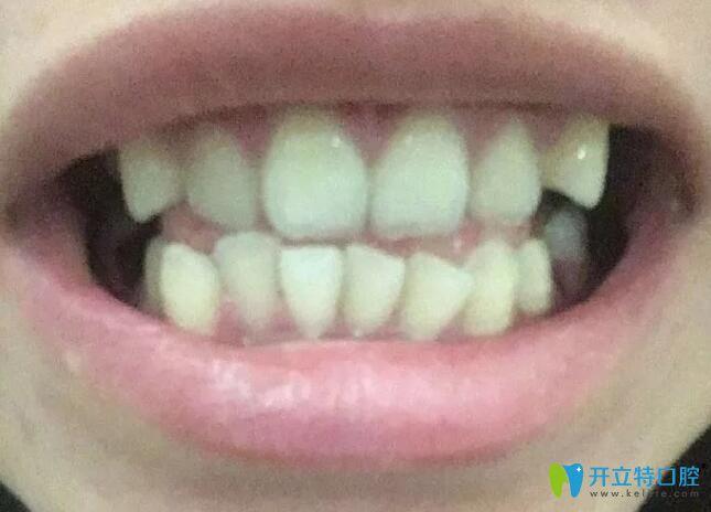 牙齿拥挤不齐选择在杭州逸盛口腔做了正畸,历时733天下牙套