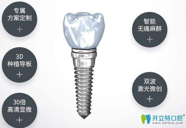 杭州美奥口腔种植牙优势