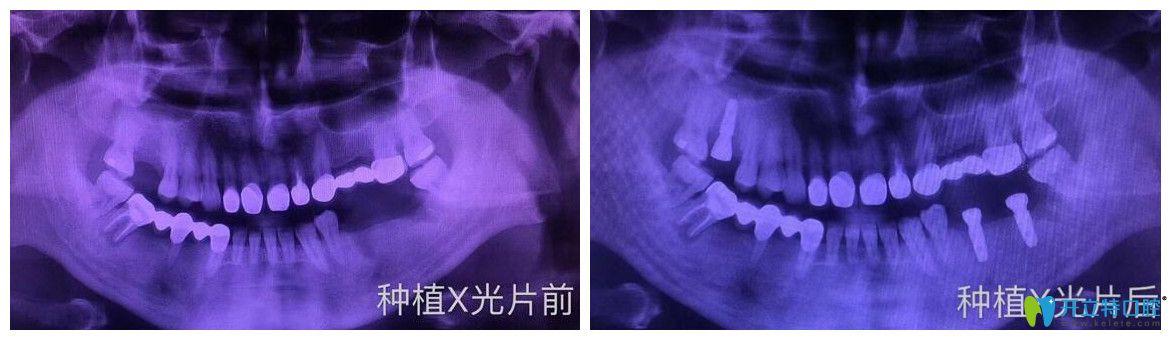 逸盛口腔口腔多颗牙缺失即刻种植案例
