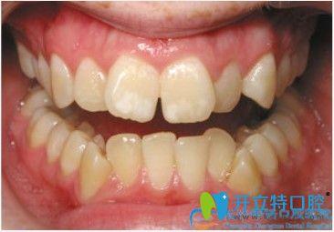 参考过长沙牙齿矫正医院排名后去中诺口腔做了对刃颌矫正