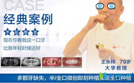 杭州美奥口腔全口种植牙案例效果