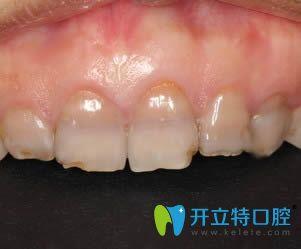 衡阳美莱口腔的超薄瓷贴面拯救了我多年的四环素牙