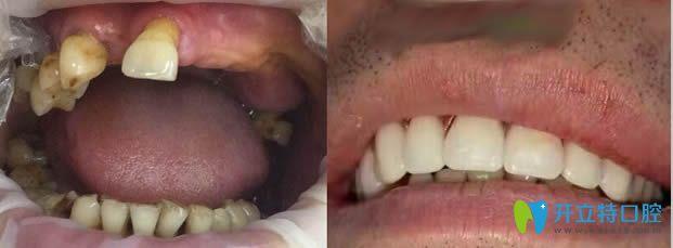 北京圣贝口腔种植牙案例前后效果对比