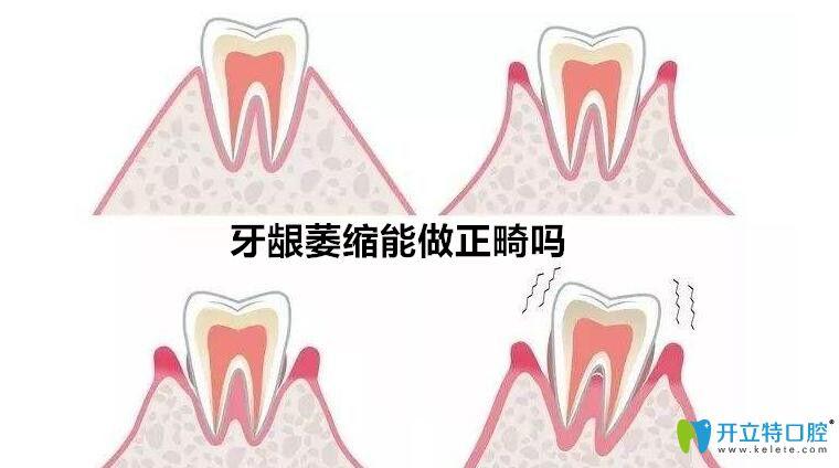 牙龈萎缩能不能做正畸?