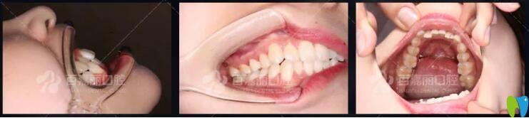 牙齿拥挤不齐矫正案例