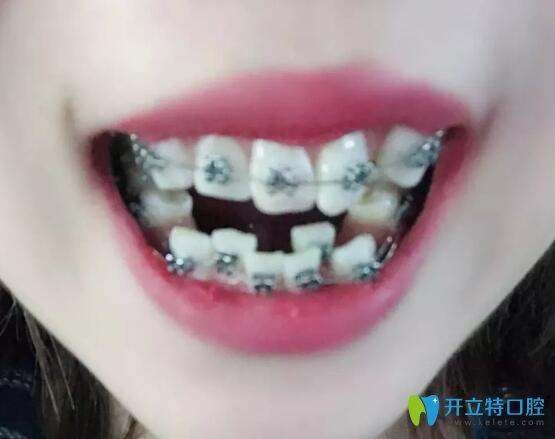 我在合肥崔劲松口腔做金属托槽矫正13个月,牙齿拥挤没有啦!