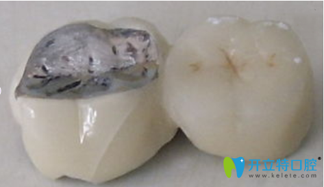 烤瓷牙根据崩瓷情况不同修复方法也不同