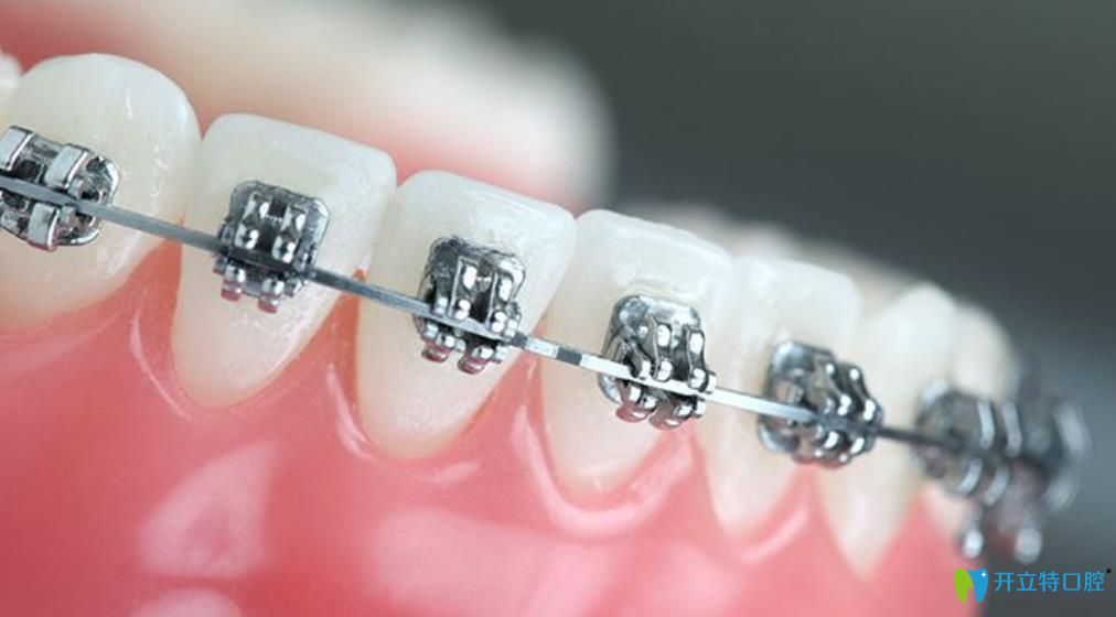 树脂补门牙缝隙后悔可以选择做矫正