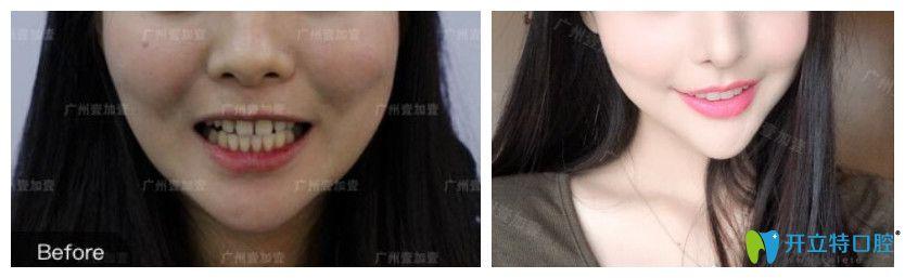 牙缝大采用美加瓷贴面修复对比图