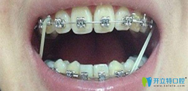 牙齿矫正中收缝要多久