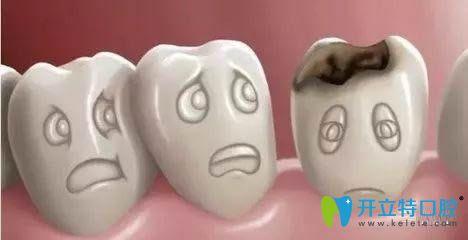 牙齿烂了个洞是修复还是拔掉?重庆何智强口腔来给专业建议