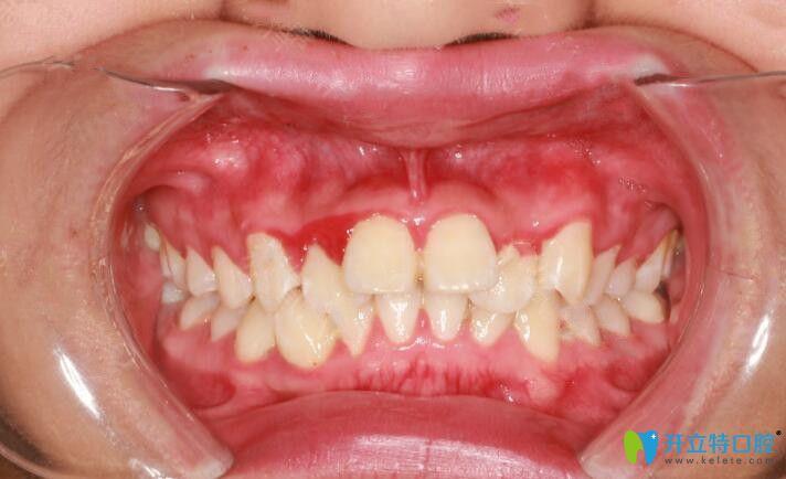 我大兔牙做了金属托槽矫正,来分享我4个月来牙齿变化图