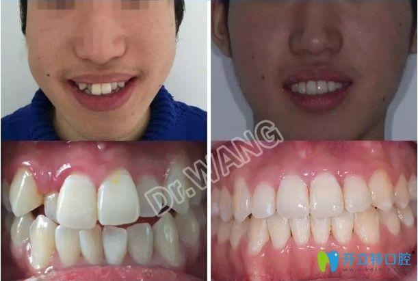 我不后悔放弃杭州公立口腔医院而选择雅莱做金属牙齿矫正