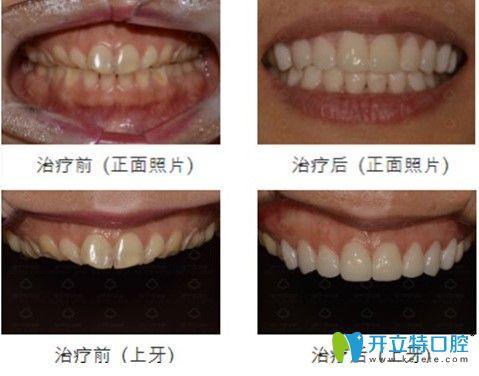 韩国安特丽牙科瓷贴面前后对比照片