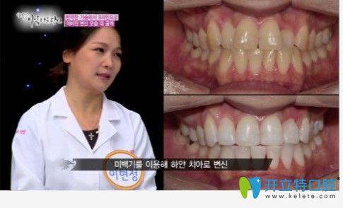 安特丽牙科李贤贞院牙齿美白前后对比效果