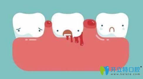牙龈疾病引起的牙齿疼痛