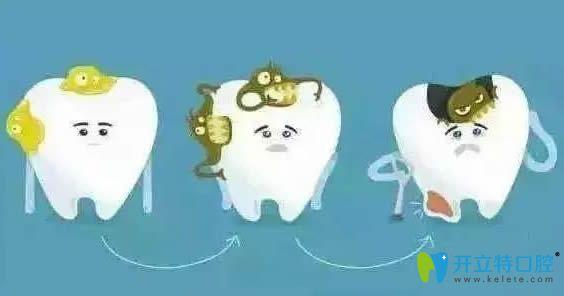 请听:大连博大口腔给大家讲解的牙齿痛是什么原因引起的