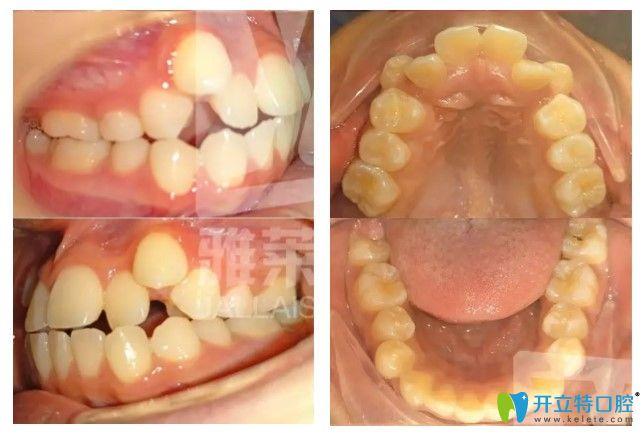 19岁的小张在杭州雅莱口腔做牙齿矫正术前照