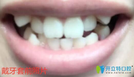 我32岁在重庆悦力口腔做陶瓷托槽牙齿矫正,效果和心得分享