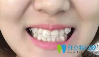 在连江县明辉口腔做的陶瓷矫正历经18个月终于要下牙套了!