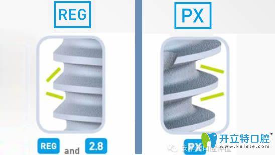 法国安卓健PX和REG的螺纹区别