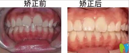 铁岭口腔诊所哪个好?提供方辉口腔儿童牙齿矫正案例参考
