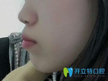 找上海圣贝口腔章依文做龅牙矫正,晒出带牙套1~12月变化图