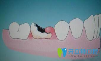 铁岭方辉口腔医生告诉大家门牙蛀牙了是补还是做牙套好?
