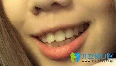 纠结了好久菏泽牙齿矫正哪里好?最后选择雅博口腔做正畸