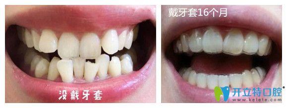 成都君臣口腔贾豫文医生牙齿矫正案例