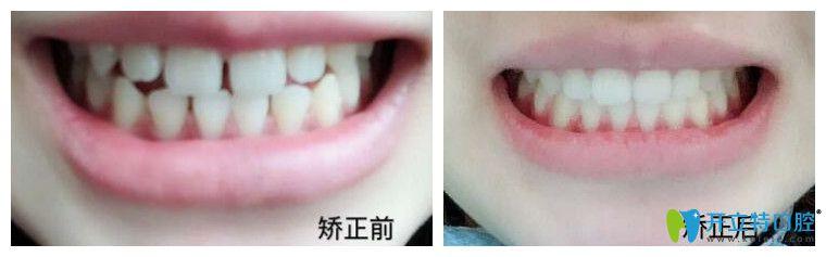 成都君臣口腔正畸怎么样?提供贾豫文医生隐形牙齿矫正案例