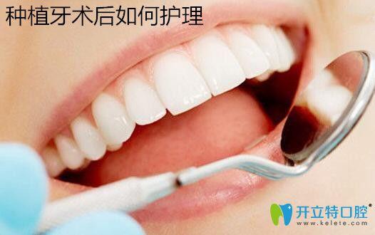 种植牙术后如何护理