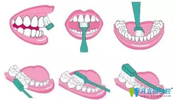 梅州中大口腔医生科普种植牙术后清洁方法