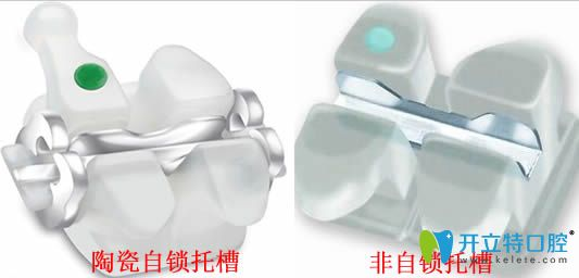 陶瓷牙套太厚是其劣势但不是容易掉的原因