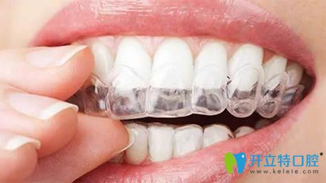 使用国产隐形牙套品牌矫正图