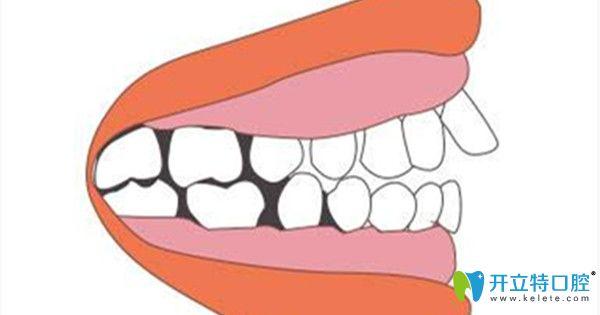 如何判断是否是牙槽骨突出