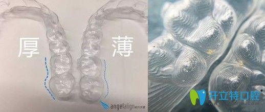 时代天使隐形牙套细节图