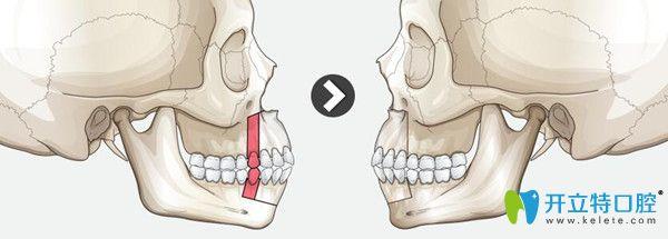 武汉正璞口腔医生告诉你怎么确定是牙槽骨突出