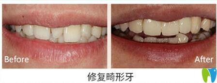 天津美奥口腔修复畸形牙齿对比图