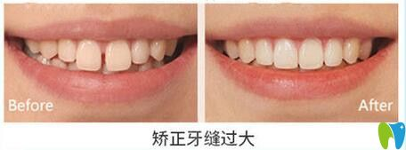 天津美奥口腔矫正牙缝过大效果图